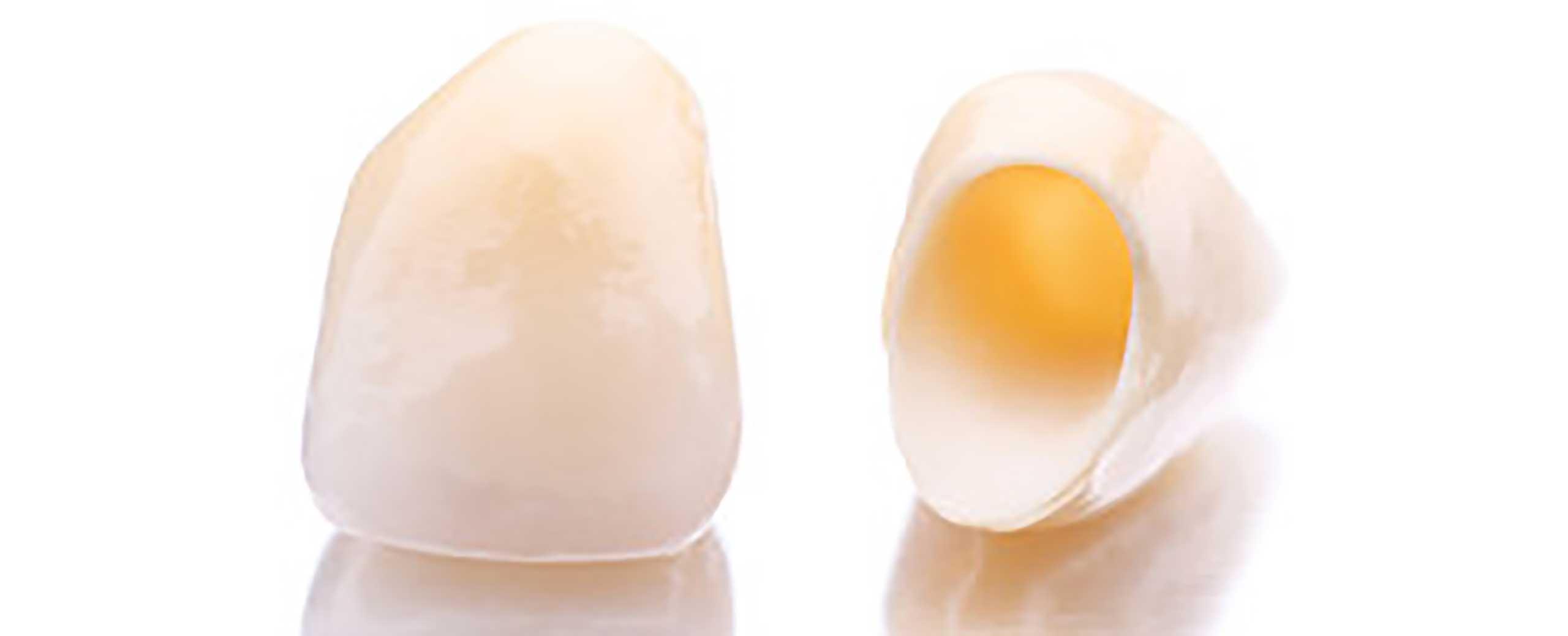 implantologie bei elegant zahn